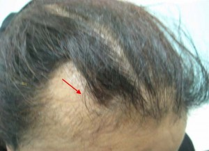 scalp problem, human hair, brazilian hair, hair loss, hair health